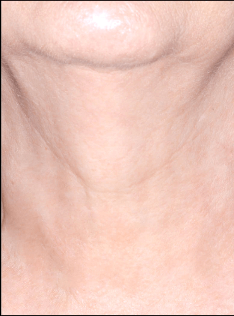 after image of chin after pro 5 treatment