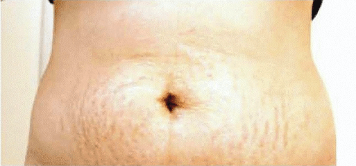 before stretch marks cellulite tummy