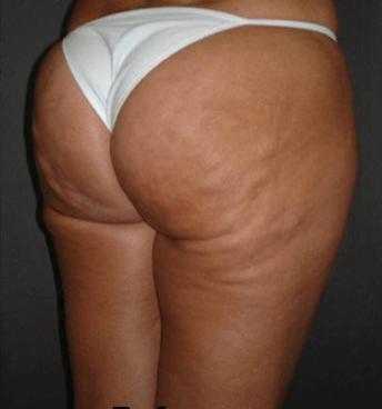 before anti cellulite