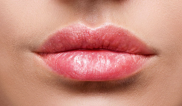 lips_after_2