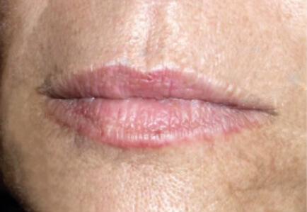 After_Lips_alt