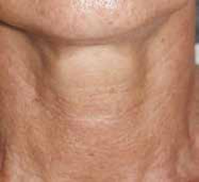 After_Neck