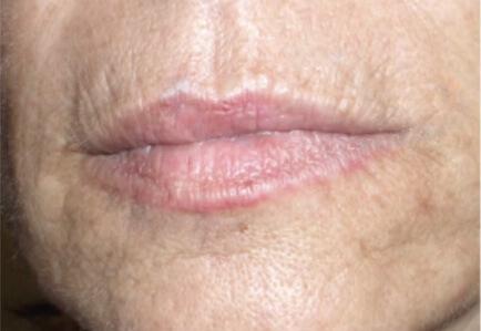 Before_Lips_alt