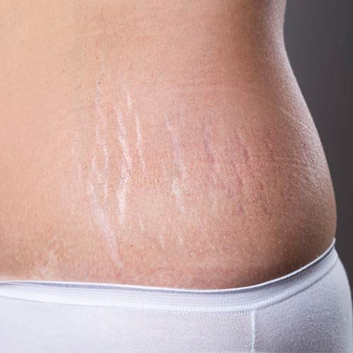 3 treatments to effectively remove your stubborn stretch marks