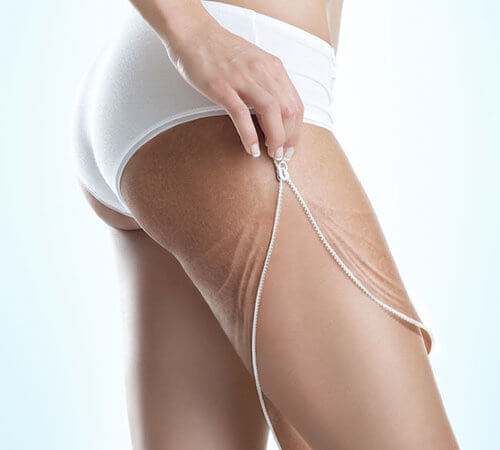All About Cellulite and How Do You Get Rid of It?