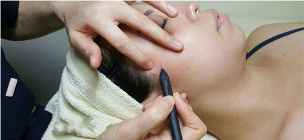 Expressions Milia Removal Treatment