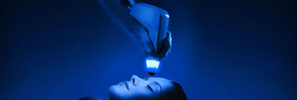 Exilis Facial Tightening by Expressions targets fine lines, wrinkles and crow's feet